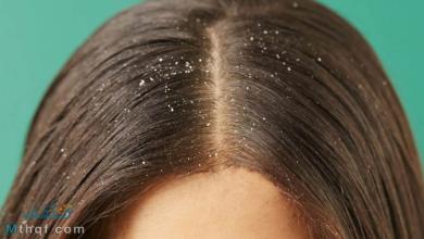 خلطات لعلاج قشرة الشعر
