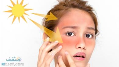 وصفات لعلاج حروق الشمس