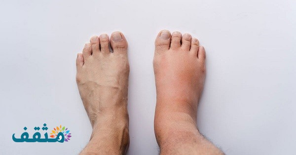 طرق علاج أملاح القدم